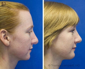 Revision Rhinoplasty, Chin Implantation, Mole Excision