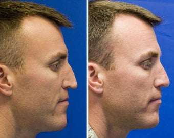 Revision Rhinoplasty with Rib cartilage graft