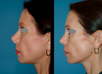 Revision Rhinoplasty (open)