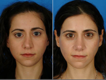 Nose Surgery (Revision Rhinoplasty)