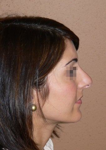 Rhinoplasty/nose job surgery