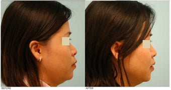 Dallas Asian Rhinoplasty