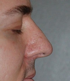 Rhinoplasty - Hump Reduction