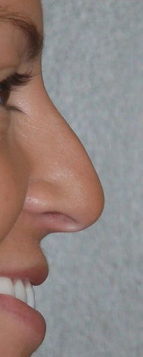 Rhinoplasty - Hump Reduction, Lift Drooping Tip