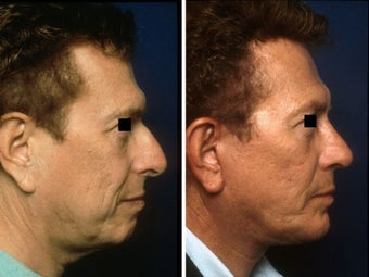 Rhinoplasty, chin implant and facelift