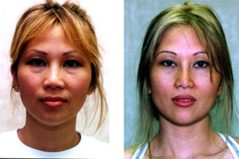 Rhinoplasty- Asian