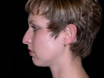 Rhinoplasty and Chin Implants