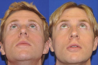 Endonasal Rhinoplasty