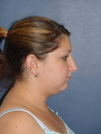 Rhinoplasty, Neck Liposuction & Chin Implant