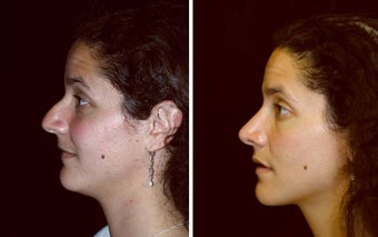 28 year old female, rhinoplasty