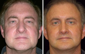 55 year old male, rhinoplasty