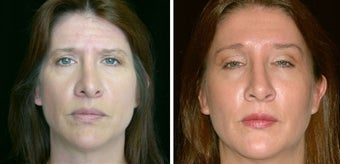 45 year old female, rhinoplasty