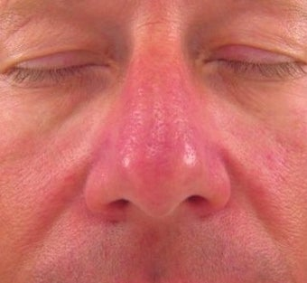 Vbeam for Rosacea Treatment