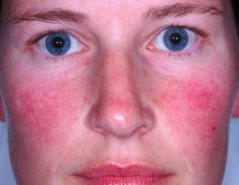 Laser treatment for rosacea
