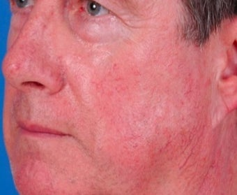 Vbeam laser rosacea treatment