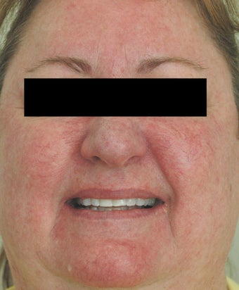 Rosacea Laser Treatment Los Angeles Before and After Pictures