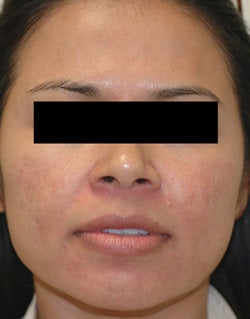 Rosacea Treatment with Lasers