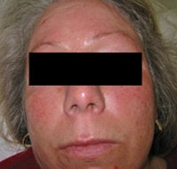 Laser Treatments for Rosacea