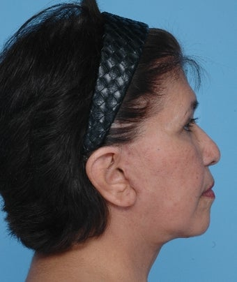 Upper Blepharoplasty and SMAS Facelift