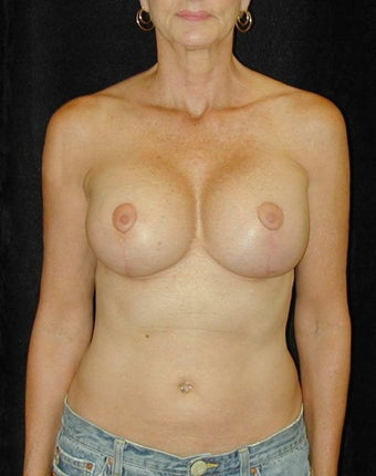 Breast Implant Revision and Scar Revision