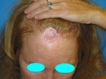 53 Year Old Female previoulsy treated with skin graft after skin cancer removal
