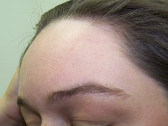 Scar Removal by Fat Transfer