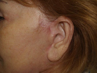 Scar and Earlobe Repair