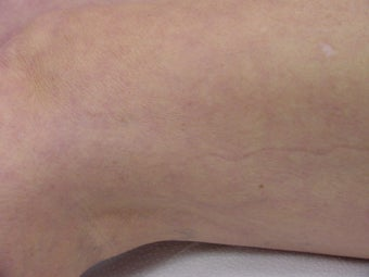 Sclerotherapy of spider veins