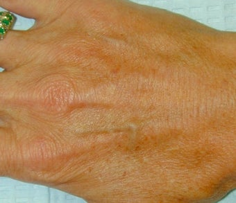 Sclerotherapy treatment for hand