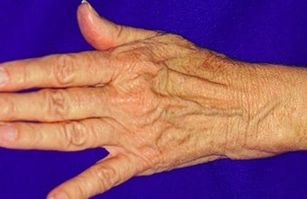 Sclerotherapy for hands