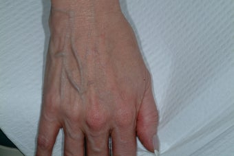 Sclreotherapy for the hands