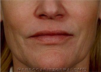 Sculptra, Botox, Juvederm and Restylane