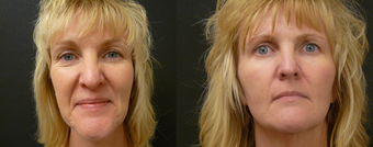 Liquid Facelift - no surgery enhancement using fillers