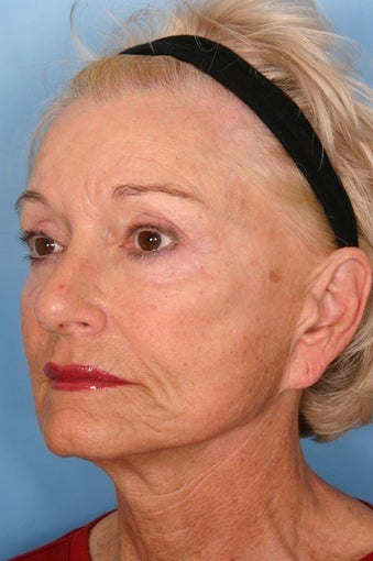 Sculptra Injections for Facial Volume Restoration