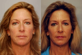 Sculptra to cheek areas
