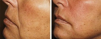 Sculptra for facial wrinkles