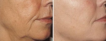 Sculptra for wrinkles around the mouth