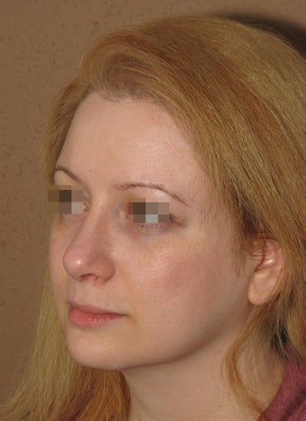 2 weeks after result of rhinoplasty/septoplasty
