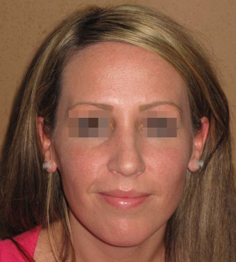 Septoplasty, nose job rhinoplasty