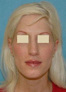 Rhinoplasty and Septoplasty