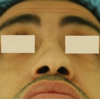 Rhinoplasty, Septoplasty