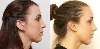 Septoplasty with rhinoplasty