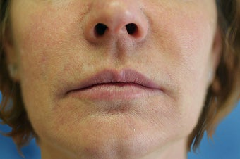Silicone Microdroplets for Lip Augmentation