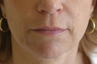 Lip Augmentation with Silicone