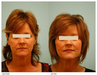 Acne Scarring Correction