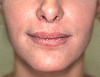 Lip Augmentation with Liquid Injectable Silicone