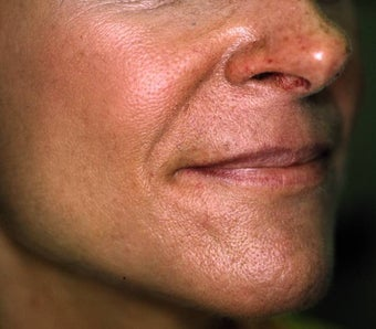 Correction of Facial Aging Grooves