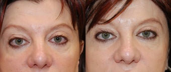 Silikon-1000 to correct lower eyelid irregularities after blepharoplasty