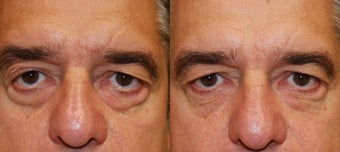 Silikon-1000 Injectable Filler Treatment for Lower Eyelid Bags