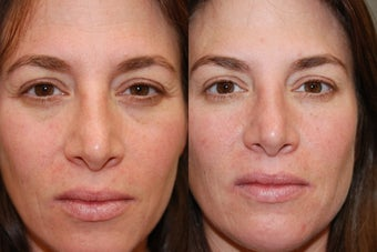 Non-Surgical Facial Rejuvenation with Silikon-1000 and Botox